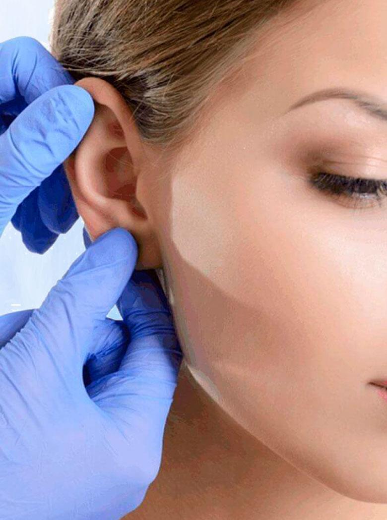 procedimento-otoplastia
